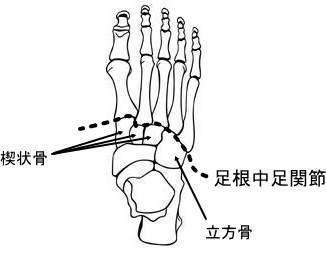 状 読み方 舟 骨 舟状月状骨間靱帯損傷に対する治療【Garcia