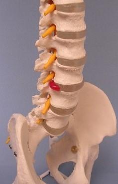 脊柱モデルAV-6(可動型、椎骨動脈・ヘルニア・大腿骨・スタンド付き)